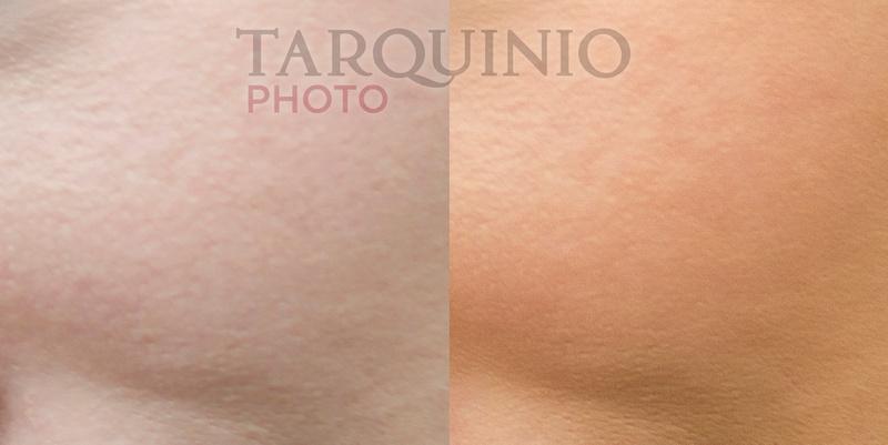 Skin Soften Comparison